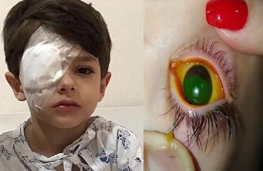Totens de álcool gel pode causar danos oculares em crianças